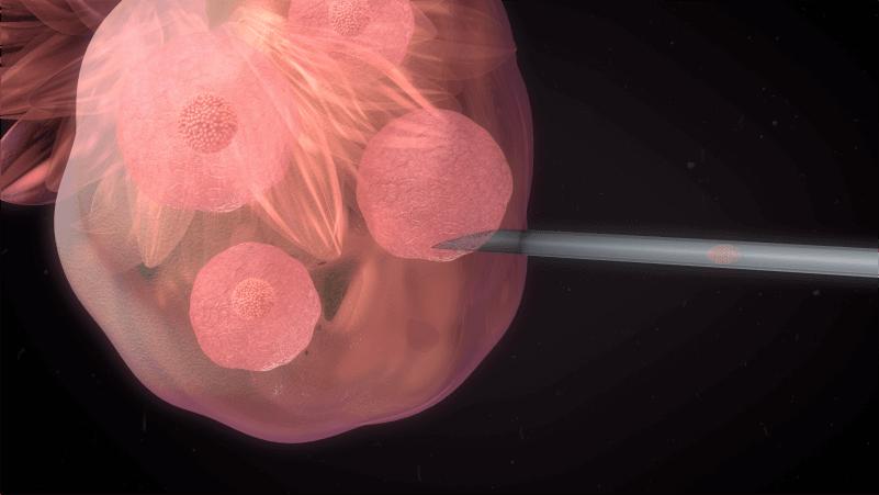 Quantos embriões podem ser transferidos - Dra Mila Cerqueira - Ginecologista Florianópolis